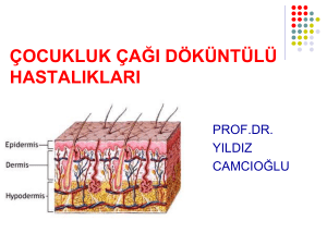 Dokuntulu-has-I